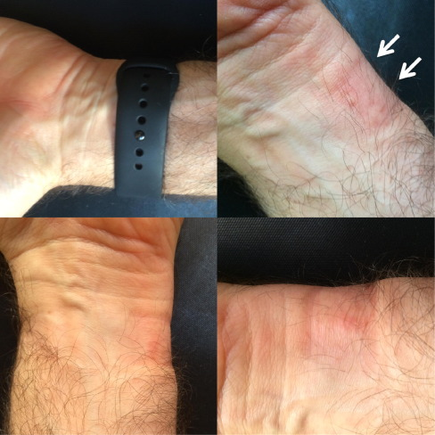 Microsoft Word – Contact Urticaria Caused by the Apple Watch_Fin