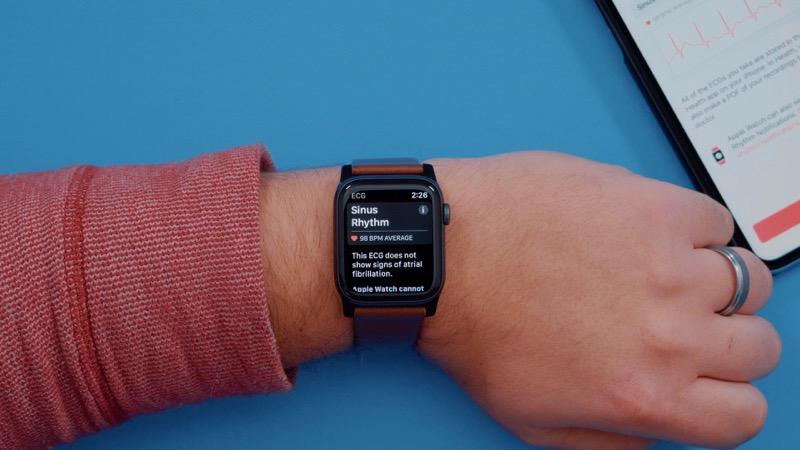 apple-watch-ekg-senzor-usa-2